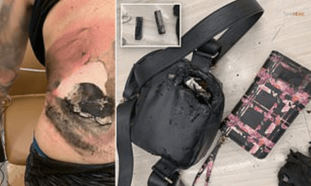Vape Pen Explosion Severely Burns Woman